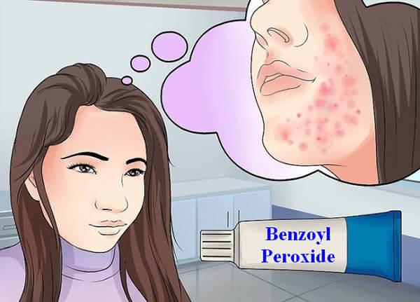 Việc sử dụng Benzoyl để trị mụn có tốt hay không?