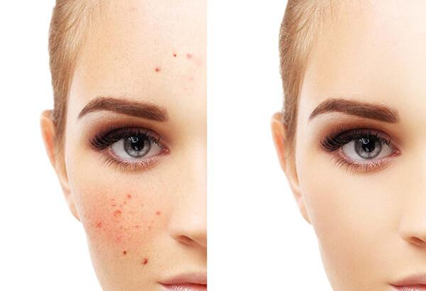 Hạn chế tối đa da bị kích ứng, mẩn đỏ hay ngứa ráp