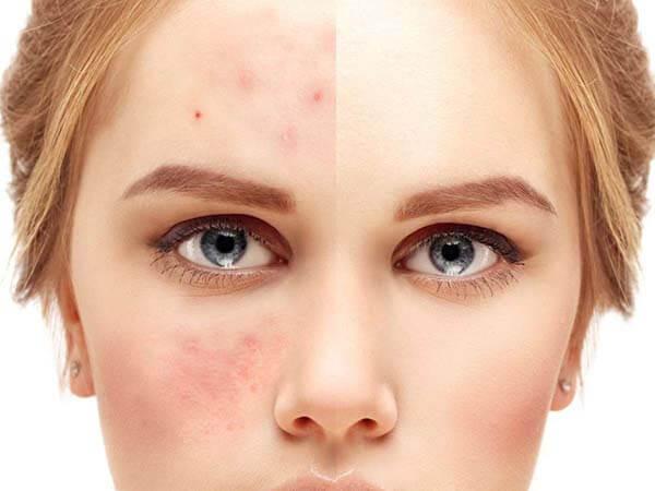 Serum C giúp xóa mờ vết thâm, cải thiện làn da trở nên trắng sáng