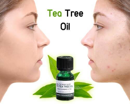 Tea Tree Oil có hiệu quả trong việc điều trị mụn và kháng khuẩn hiệu quả
