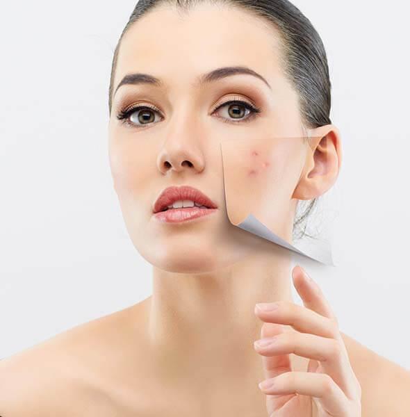 Cải thiện làn da tận sâu bên trong với phương pháp Peel da được ưu tiên hàng đầu