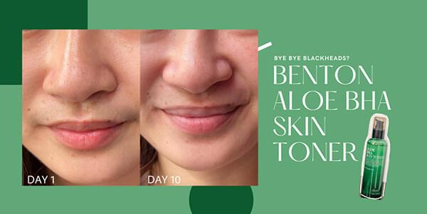 Vừa cấp ẩm và cải thiện làn da thêm mịn màng, giảm các tác nhân gây hại cho da