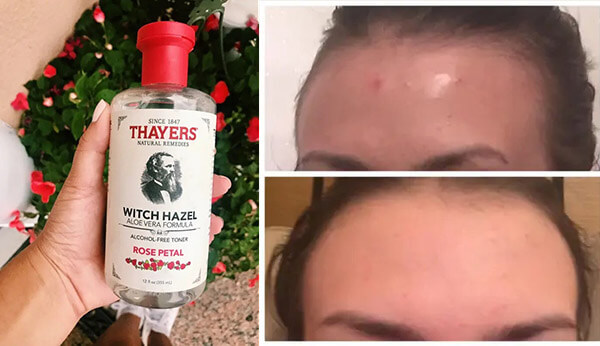Mang lại hiệu quả tuyệt vời với những bạn da khô, da nhờn, da bị mụn và dễ kích ứng