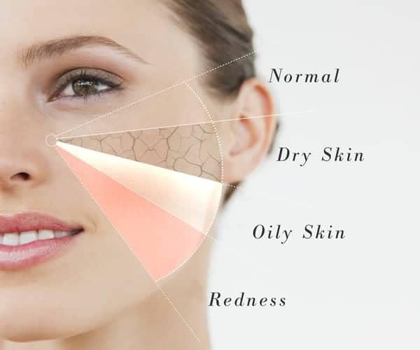 Xác định da để lựa chọn loại mặt nạ phù hợp