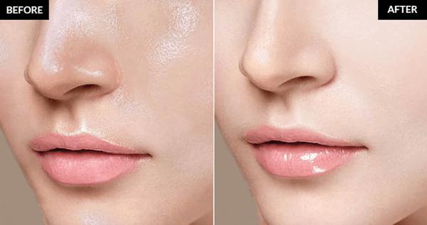 Cải thiện làn da dầu với mặt nạ dưỡng ẩm thiên nhiên