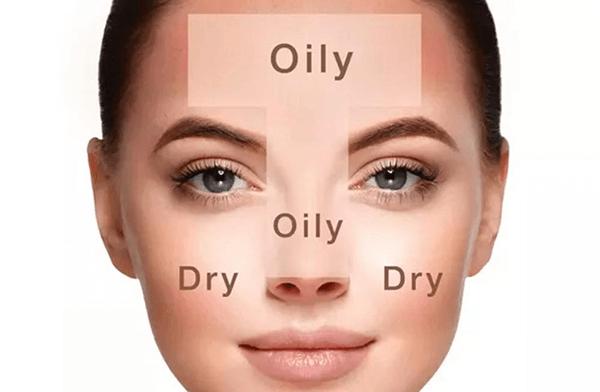 Da hỗn hợp là sự tổ hợp của cả da khô và da dầu.