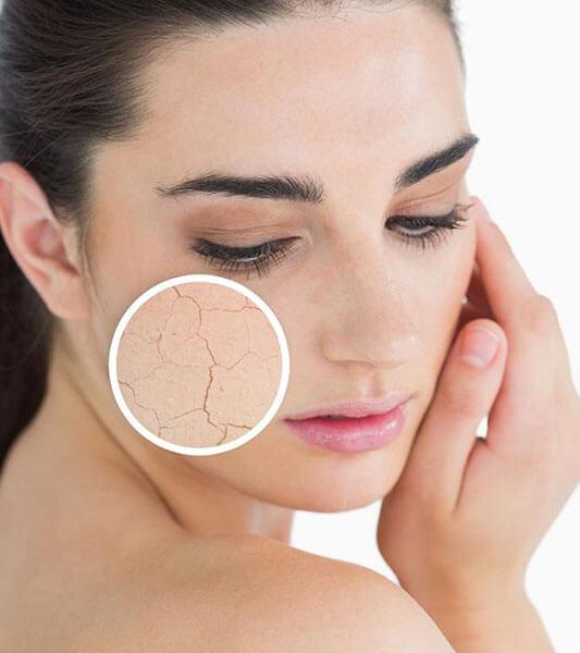 Lựa chọn sữa rửa mặt nào tốt và phù hợp nhất cho da khô