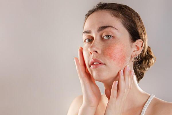Da nhạy cảm được nhật xét là làn da khó chăm sóc nhất