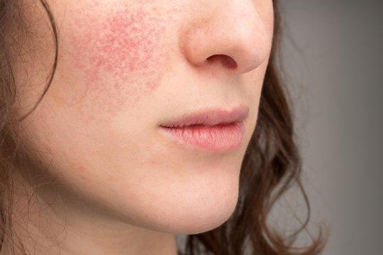 Với thời tiết lạnh và hanh khô thì làn da khô sẽ chịu nhiều ảnh hưởng so với các loại da khác