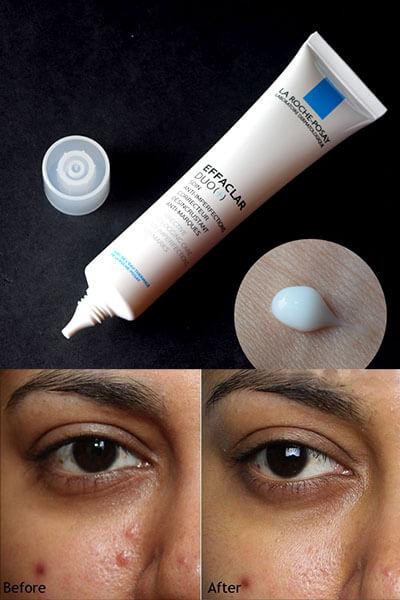 Phục hồi và kích thích quá trình tái tạo làn da sau khi trị mụn