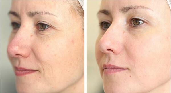 Quy trình chăm sóc da khô giúp ngăn sự hình thành các nếp nhăn và lão hóa sớm cho da