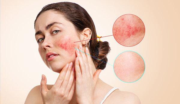 Da nhạy cảm đòi hỏi cần phải chăm sóc hơn so với các loại da thông thường