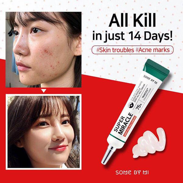 """Kem Trị Mụn Cấp Tốc """"14 ngày"""" Some By Mi Super Miracle Spot All Kill Cream"""