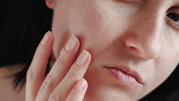 Làn da khô sẽ bị lão hóa rất nhanh nếu không chăm sóc kỹ lưỡng