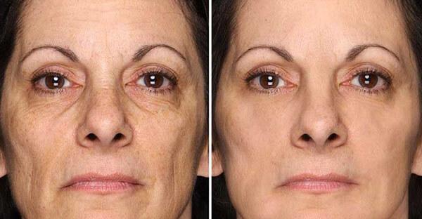 Khắc phục tình trạng lão hóa và kiểm soát tình trạng khô và dầu nhờn trên da