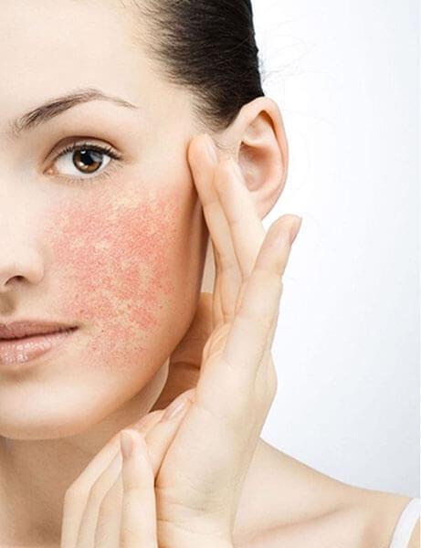 Da nhạy cảm dễ bị tổn hơn các loại da thông thường