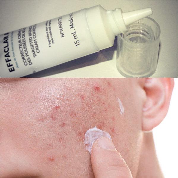 Kết cấu kem dễ chịu, không gây kích ứng và làn dịu da khi sử dụng