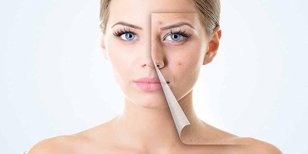 Chú ý bảng thành phần của từng loại sản phẩm để tăng hiệu quả trị mụn và độ an toàn với da