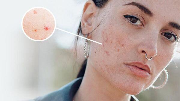 Mụn trên da hỗn hợp được gây ra bởi các tác nhân bên ngoài môi trường